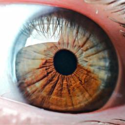 freetoedit heterochromia eye eyeball iris