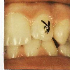diamond teeth playboy playboybunny bunny