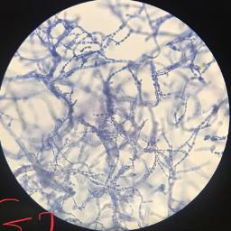 microroscope fungi lab freetoedit