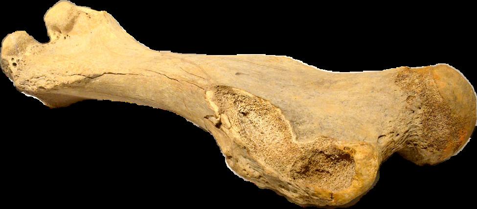 #bone