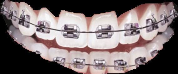 clear wire braces teeth freetoedit
