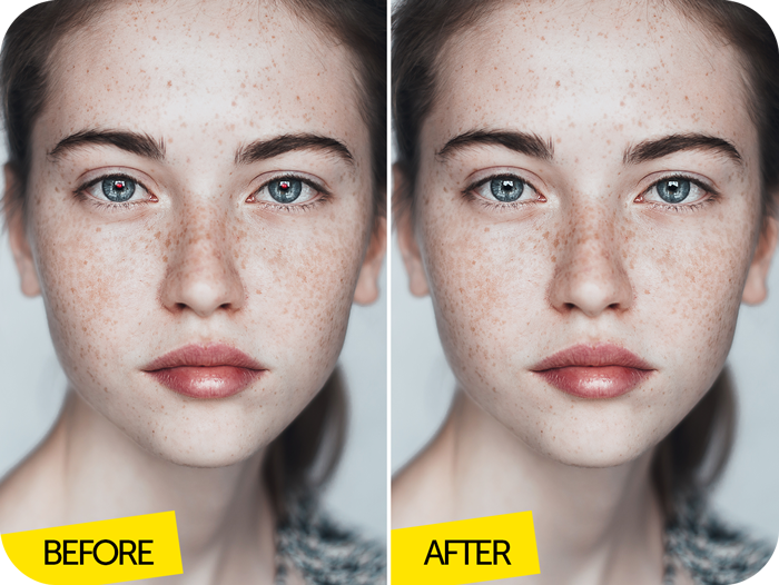 freckles girl before after Image